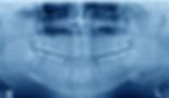 Skjermbilde 2019-03-27 kl. 17.52.29.png