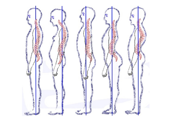 HowtoImproveYourPosture-en
