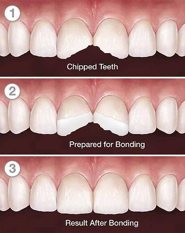 dental-bonding-dentist-kusadasi-1-1.jpg