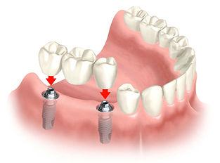 several-teeth-misising-dentist-kusadsai.