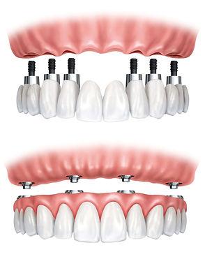 no-teeth-dental-implant-scenario-dentist