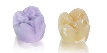 ips-emax-crowns-dentist-kusadasi.jpg