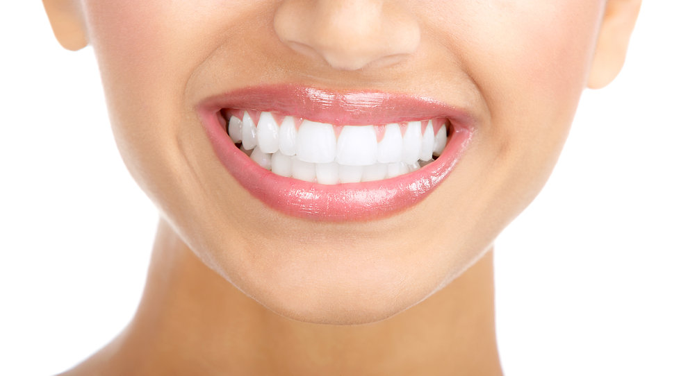 Teeth Whitening-perfect teeth.jpg