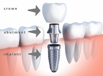 three_parts_of_an_dental_implant_kusadas