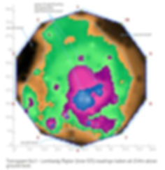 Tomograph image