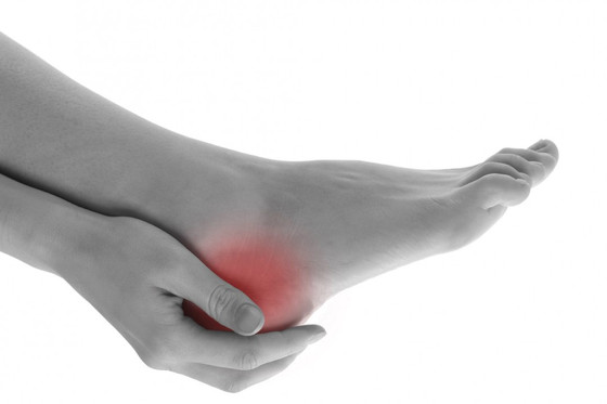 5 Frequently Asked Question about Plantar Fasciitis
