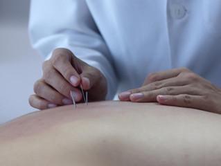 Benefícios da acupuntura no tratamento de pacientes com câncer