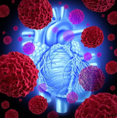 Cardio-oncología en palabras simples