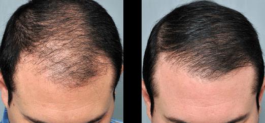 Hair-restoration-2_edited