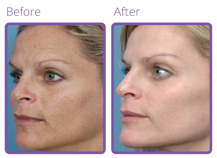 L.-Spa-Micro-Needling-BEFORE-AFTER-1