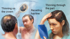 androgenic alopecia littleton co prp for hair loss