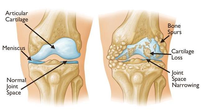 Knee osteoarthritis treatment
