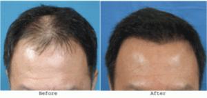 PRP for hair loss littleton co price of prp