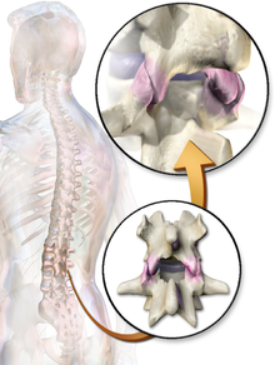 Facet Joints Littleton Chiropractor
