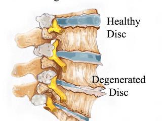 Potentially Avoid Spinal Degeneration with Early Screening for Spinal Alignment