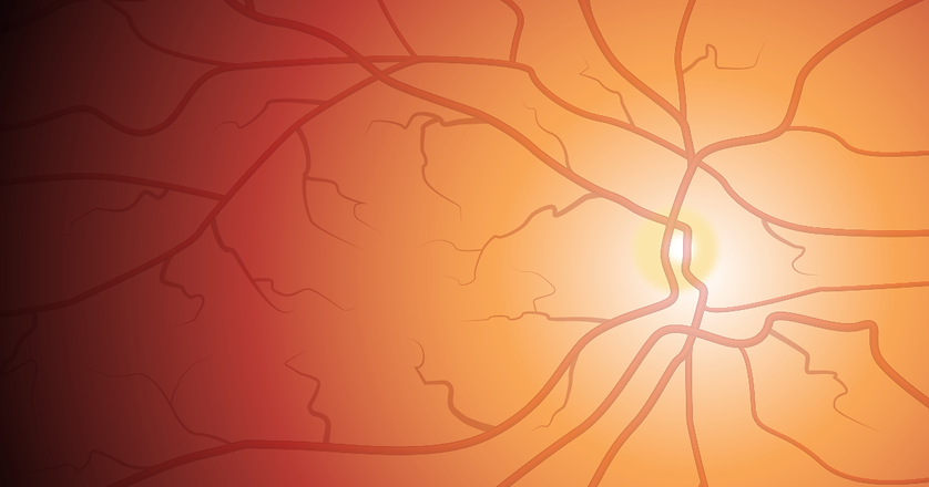 retina-qa-1200x630.png