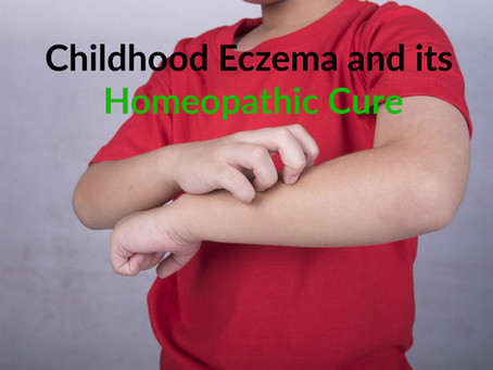 Your Child's Eczema and its Homeopathic Cure :)