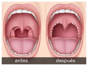 Extração das Amígdalas