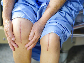 Home Physiotherapy for Total Knee Replacement