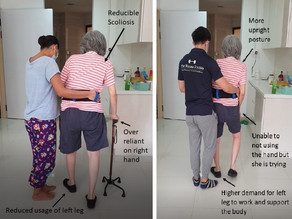 The Downside of Over-reliant on Walking Aid in Stroke Rehabilitation