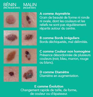 Comment dépister un cancer de la peau