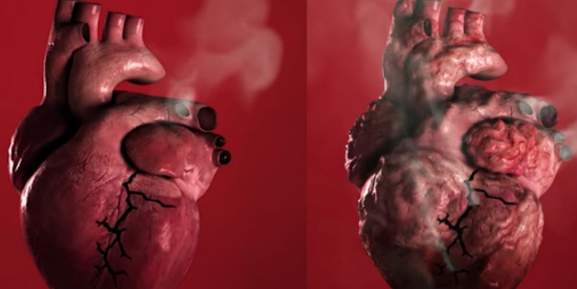 this-scary-video-shows-how-smoking-leads