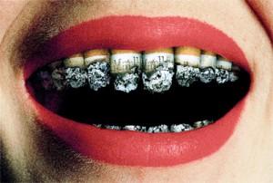 Smoking-Teeth-300x202