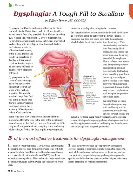 Dysphagia A Tough Pill To Swallow Swallowing And Neurological