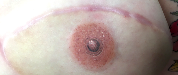 After - left breast