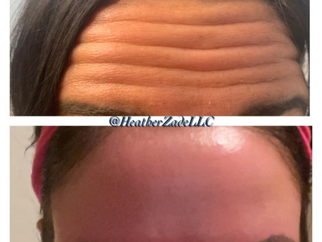 Before And After Botox!!!!!