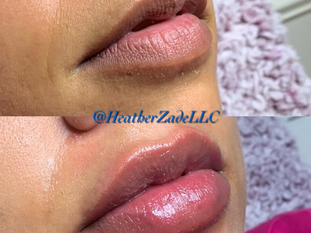 In love. Post Treatment (This Was After 2 Syringes Juvederm)