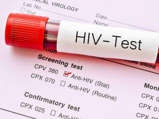 AIDS Nedir Ne Değildir?