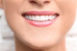 Dental-Bonding.jpg