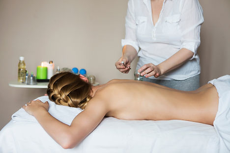cupping therapy toronto.jpg