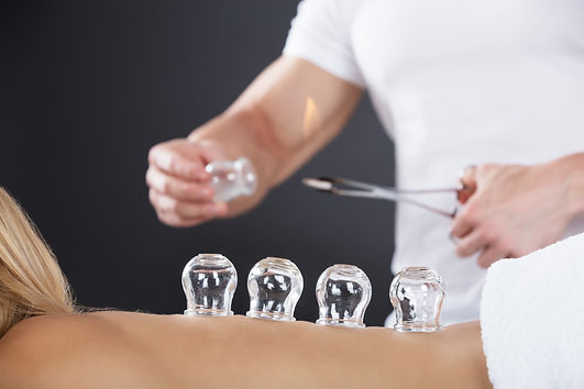 cupping therapy treatment.jpg
