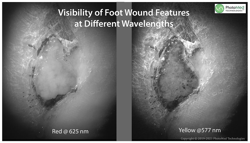 Wound Feature Visibility 2021.jpg