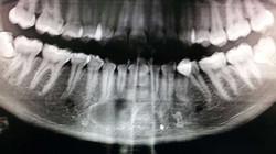 Cirugía Oral, Maxilofacial Odontoríe