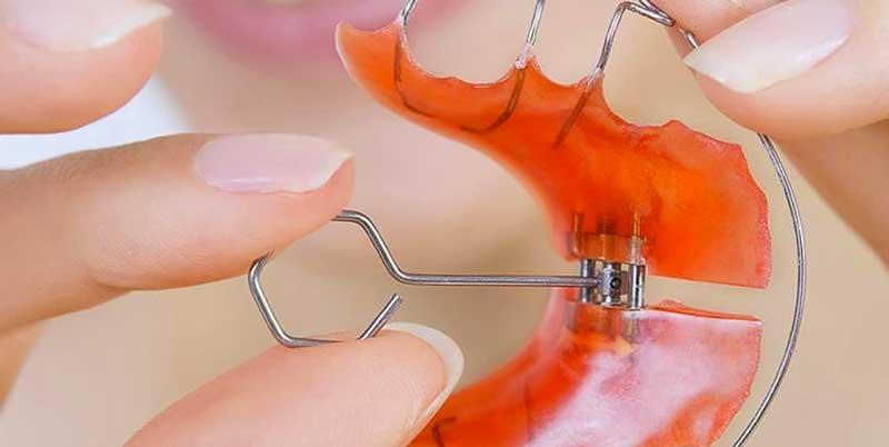 Ortopedia Maxilar | Odontoríe