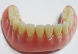 implantologia-C04