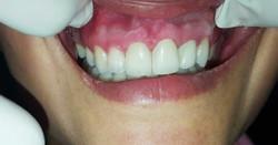 Estética Dental | Odontoríe