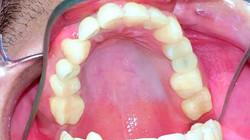 Implantología | Odontoríe