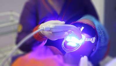 Blanqueamiento Laser