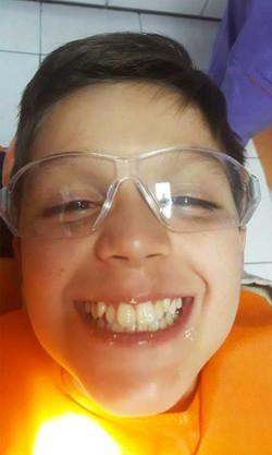 Odontopediatría   Odontoríe
