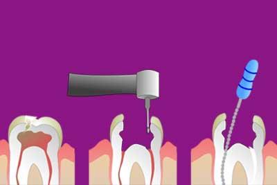 Endodoncia | Odontoríe