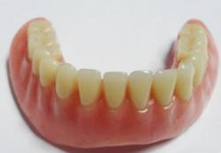 implantologia-C03