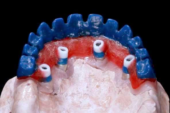 Laboratorio Dental | Odontoríe