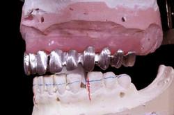 Laboratorio Dental   Odontoríe