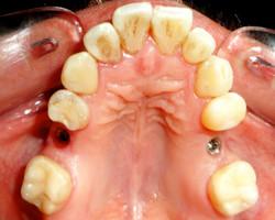implantologia-A01