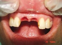 implantologia-B07