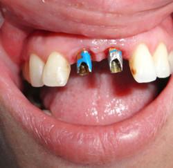 implantologia-B10